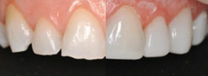 ws-cosmetic-dentistry-immediate-veneers