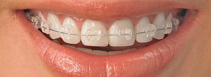 ws-cosmetic-dentistry-teeth-straightening