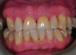 Invisalign case with cosmetic composite bonding and professional teeth whitening