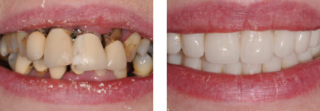 Total implant makeover