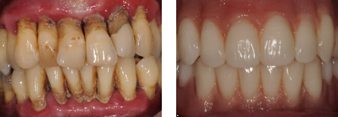 Failing teeth from Gum Periodontal disease
