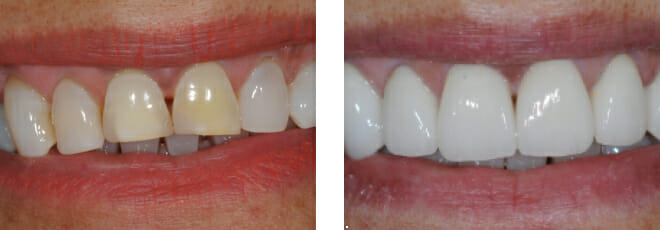The beauty of porcelain crowns on ageing teeth and implants