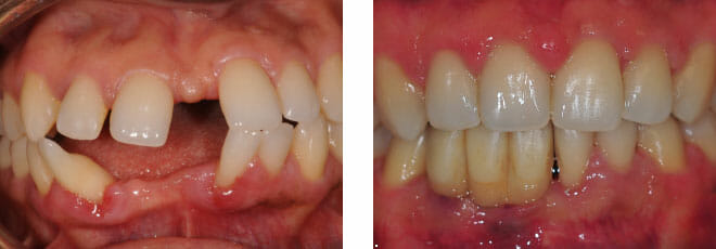 Complex orthodontic case with multiple missing teeth.