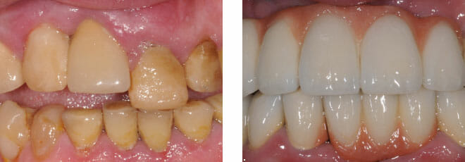 Implants and crowns upper and lower