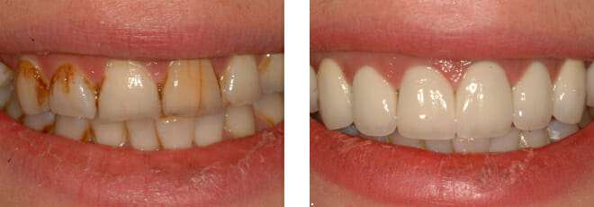 The Natural Beauty of Porcelain/Ceramic Crowns and Veneers